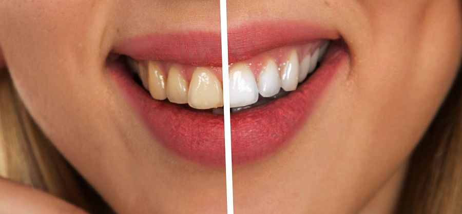 Dal Tibet, il segreto naturale per avere denti bianchi